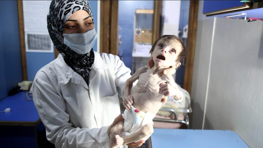الجوع يلتهم أطفال غوطة دمشق الشرقية