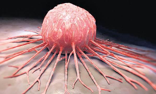 السرطان.. السبب الثاني للموت في العالم