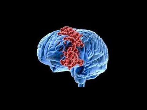 دواء تجريبي يحسّن فاعلية علاجات سرطان المخ عند الأطفال