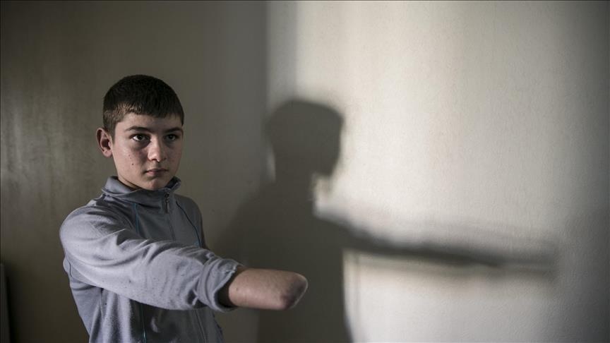 طفل سوري يأمل بالحصول على يد اصطناعية في تركيا