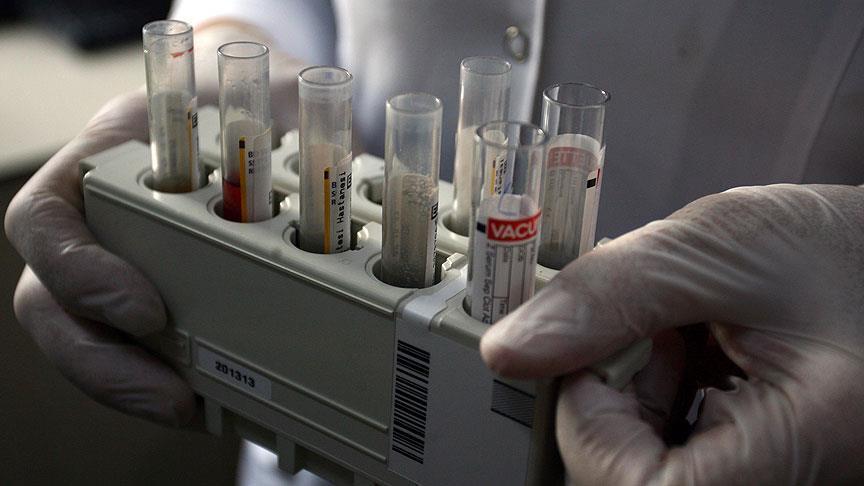 """مصر.. 10 آلاف و550 مصابا بـ""""الإيدز""""منذ 1986"""